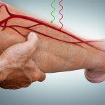 noga krążenie